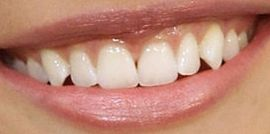 Picture of Camilla Belle teeth and smile