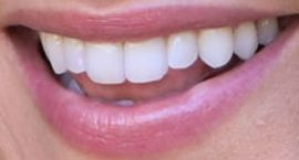 Picture of Candace Cameron Bure teeth and smile