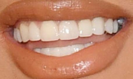 Cardi B Teeth Pictures