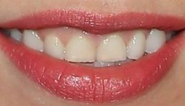 Carly Rae Jepsen's teeth