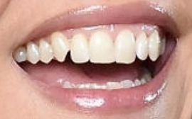 Picture of Cecily Strong teeth and smile