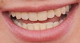 Picture of Charlie Puth teeth and smile