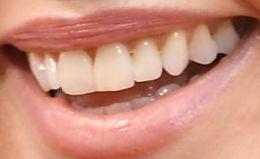 Charlize Theron teeth