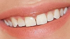 Picture of Chloe Grace Moretz teeth and smile