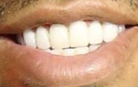 Picture of Chris Bridges Ludacris teeth and smile