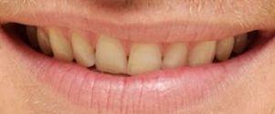 Chris Hemsworth teeth