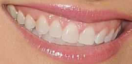 Picture of Chrishell Stause teeth and smile