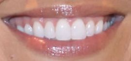 Picture of Christina Anstead teeth and smile