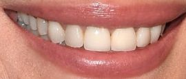 Picture of Christy Turlington teeth and smile