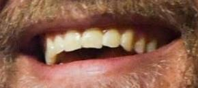 Conor McGregor's teeth