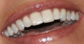 Picture of Courtney Robertson teeth and smile