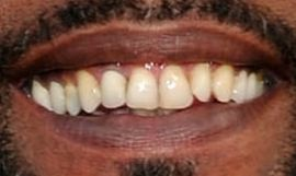 Picture of Darius Rucker teeth and smile