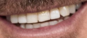 David Beckham teeth