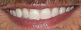 Picture of David Giuntoli teeth and smile
