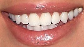 Picture of Debby Ryan teeth and smile