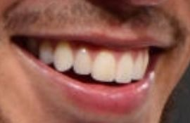 Picture of Devin Booker teeth and smile