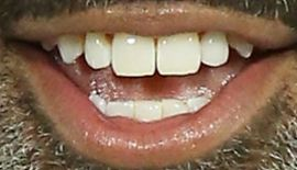 Picture of Donnell Turner teeth and smile