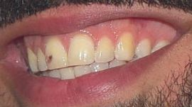 Picture of Drake teeth and smile