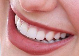 Dua Lipa teeth