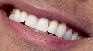 Picture of Dwayne Johnson The Rock's teeth while smiling