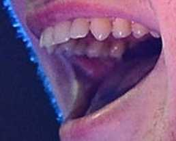Ed Sheeran's teeth