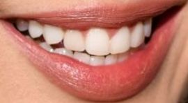 Picture of Eiza Gonzalez teeth and smile