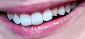Picture of Elisabeth Moss teeth and smile