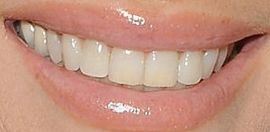 Picture of Elizabeth Hurley teeth and smile