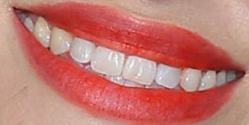 Picture of Emily Hampshire teeth and smile