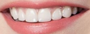 Picture of Emma Stone teeth and smile