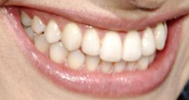 Picture of Emmy Rossum teeth and smile