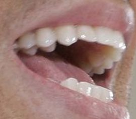 Picture of Enrique Iglesias teeth and smile