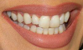 Picture of Eva Longoria teeth and smile