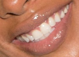 Picture of Eva Marcille Sterling teeth and smile