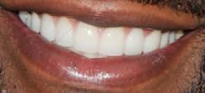 Floyd Mayweather Jr's teeth
