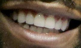 Floyd Mayweather Jr's teeth and smile
