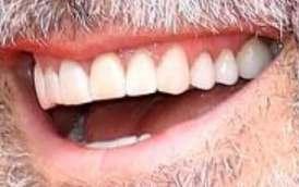 George Clooney's teeth