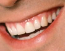 George Clooney's teeth