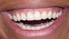 Picture of Giannis Antetokounmpo teeth and smile