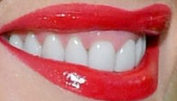 Picture of Gwen Stefani's teeth while smiling