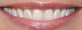 Picture of Gwyneth Paltrow's teeth while smiling