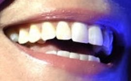 Picture of Gwyneth Paltrow's teeth and smile while smiling