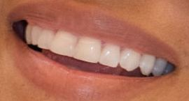 Halle Berry's teeth