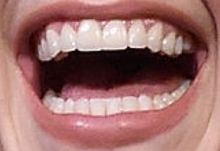 Hayden Panettiere's teeth