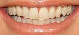 Picture of Heidi Klum's teeth while smiling