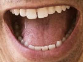 Picture of Helio Castroneves teeth and smile