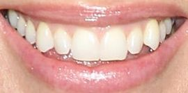 Picture of Hilary Swank teeth and smile