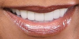 Picture of Holly Robinson Peete teeth and smile