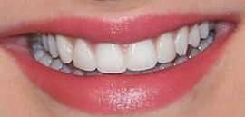 Picture of Hunter King teeth and smile