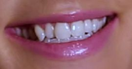 Picture of Ingrid Andress teeth and smile